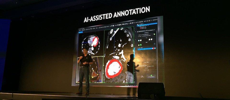 Nvidia进军智慧医疗,锁定医疗影像判读和探索新药两大方向